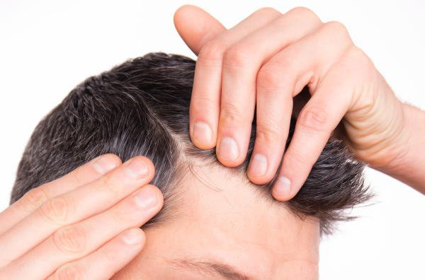 Corrective surgery maximises hair graft results