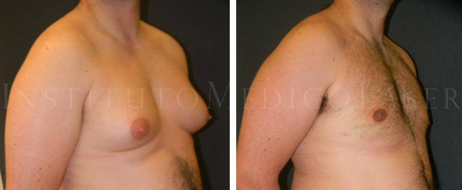 Before and after photographs of gynaecomastia treatment with Laser lipolysis
