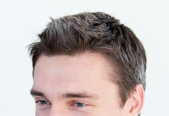 Hairline desing is essential for natural results