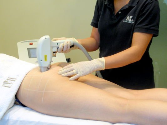 IML hair removal session with diode laser