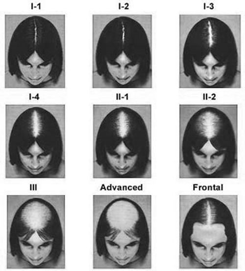 Ludwig scale: female hair loss classification