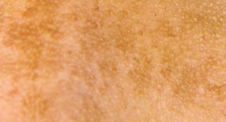 Melasma is a diffuse type of facial pigmentation