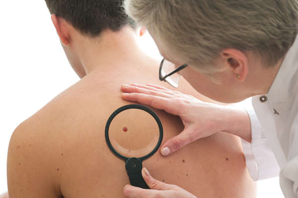mosh surgery, specialised in excising skin cancer