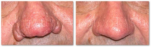 Before and after rhinophyma treatment