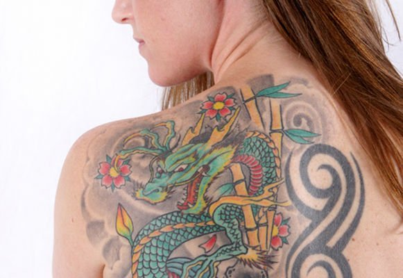 The colour of tattoo is a factor that influence laser tattoo removal