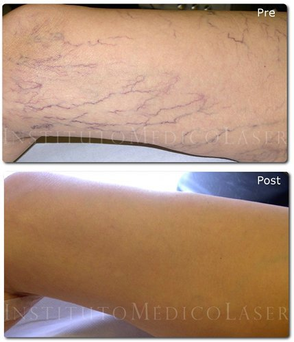 Before and after treatment of varicose veins