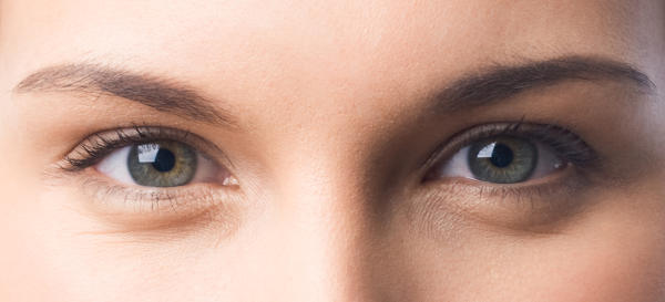At IML, xanthelasma removal is performed with CO2 laser