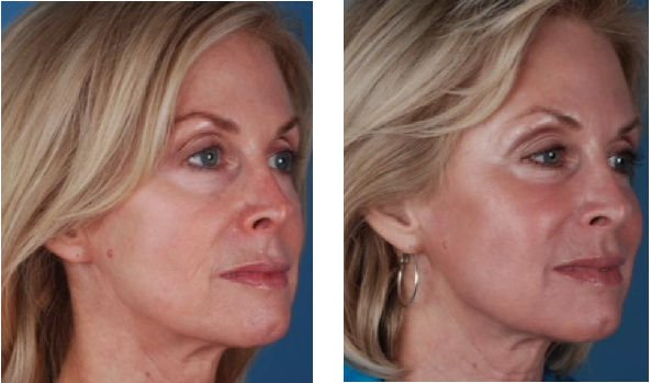 Elimination of blemishes, unification of tone and improved texture in the skin are some of the results of Blue Peel